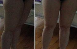 moje paskudne nogi