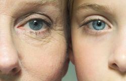 Kolagen a starzenie się skóry
