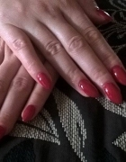 Zmiażdżone palce znów mogą być piękne