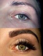 Metamorfoza oka